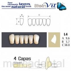 Ultracal Xs Refill